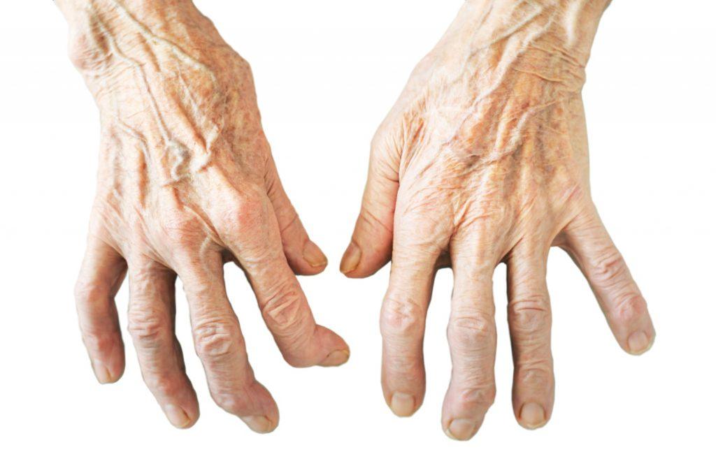 Arthrose Finger an beiden Händen